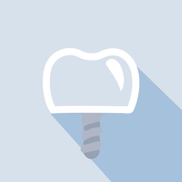 procedures-dental-implants-80px
